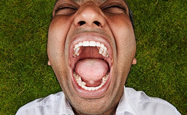 Persoana cu cei mai multi dinti din lume?